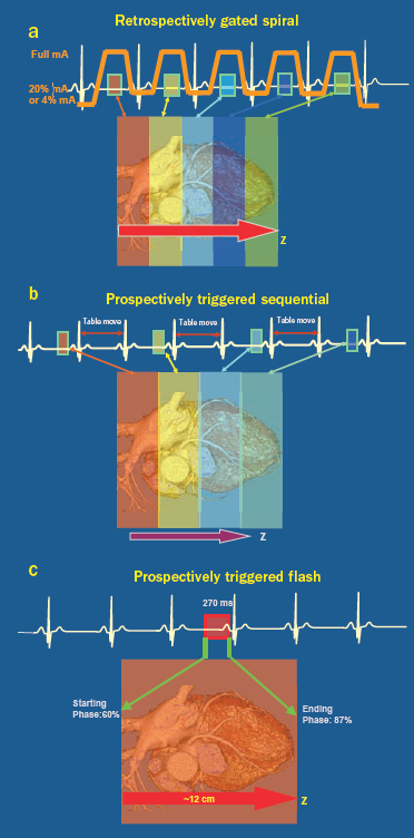 EKG-gating_2