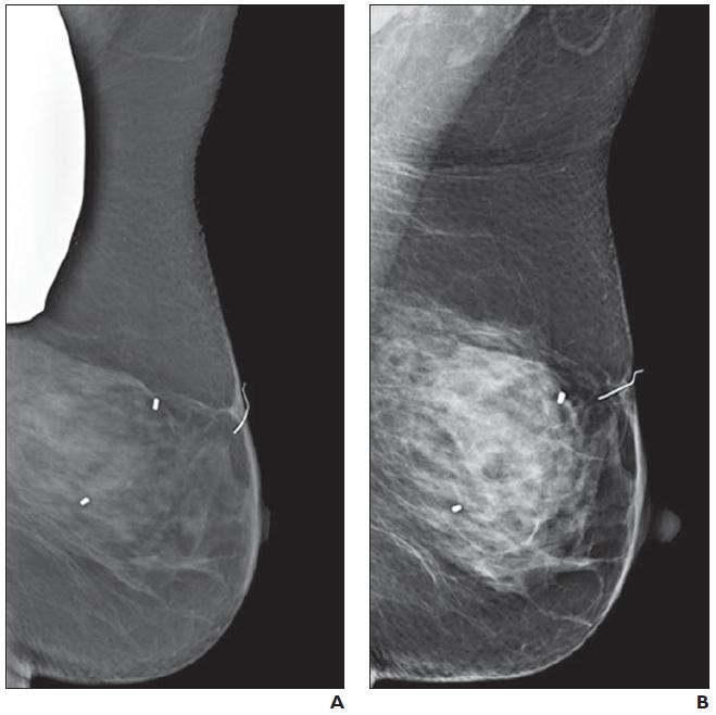 mammography_shielding