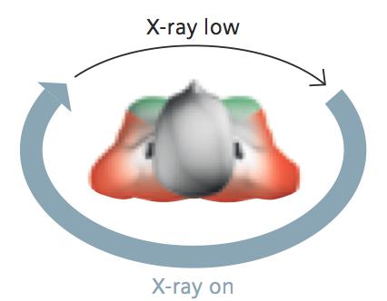 Organ-based ATCM